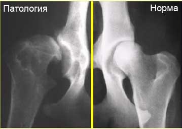 Снимок тазопедренных суставов лекарственные препараты для суставов